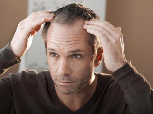 从我的脂溢性脱发治愈了,谈怎么确定脂溢性脱发